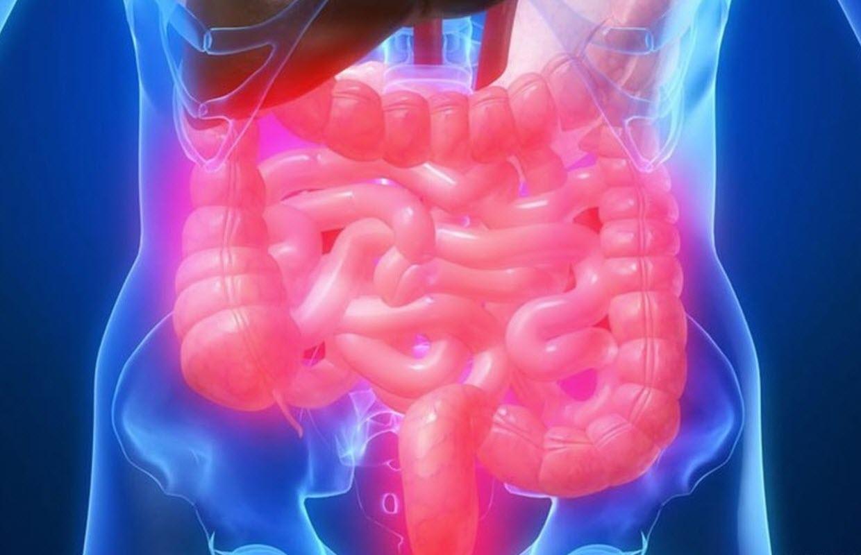 Ärritatud soole sündroom dieet